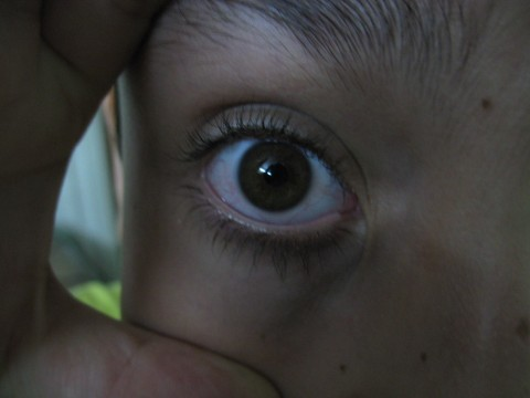 چشم بیش از �د باز شده ی علی