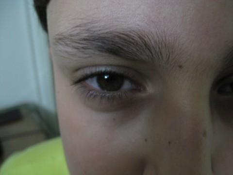 چشم عادی علی